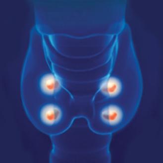 parathyroid-gland-21